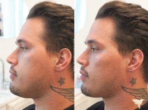 Restylane Contour before and after