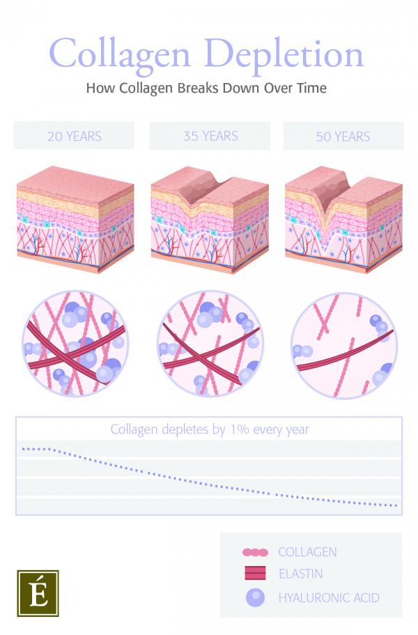 collagen depletion infographic