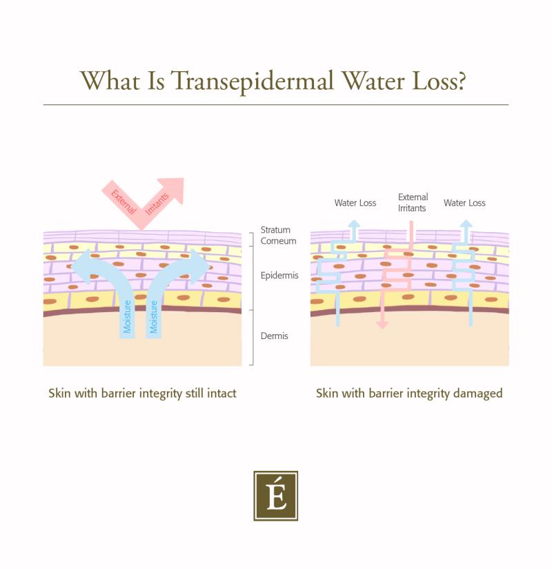 Transepidermal water loss infographic